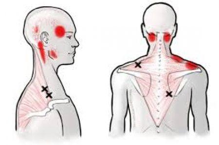 pijnzone 2